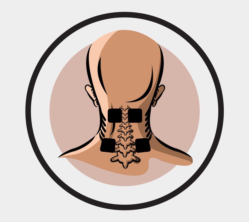 neck clipart, Cartoons - Neck Clipart Sore Muscle - Tens Neck Pain Placement