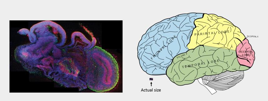 human brain clipart, Cartoons - Human Brain Png - Mini Brain