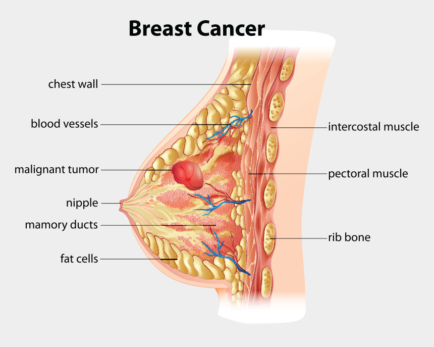 cancer ribbon clipart, Cartoons - Breast Cancer Pic Clipart - Cross Section Of Breast