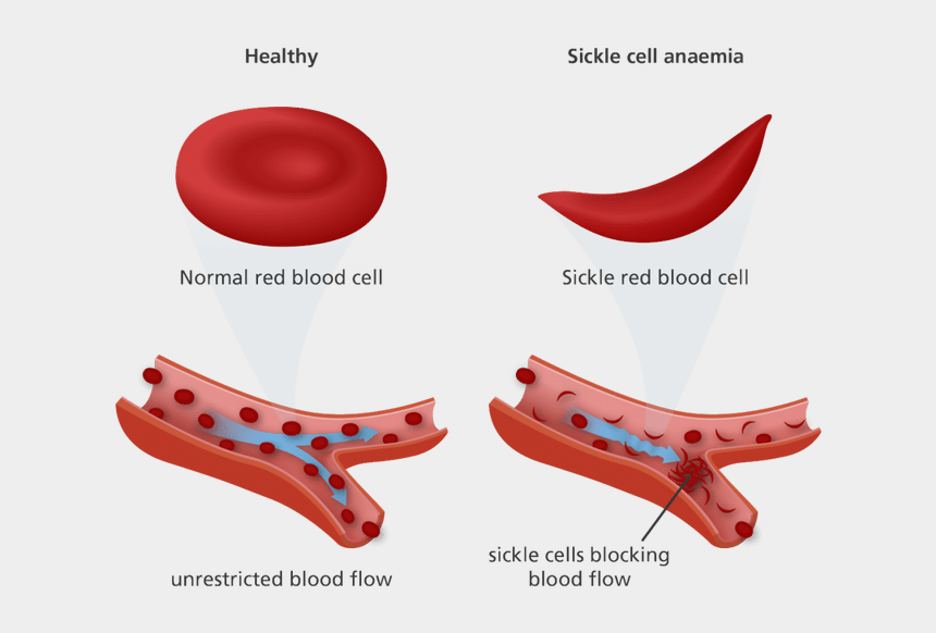 cotton clipart, Cartoons - Cotton Clipart White Blood Cell - Normal Vs Sickle Red Blood Cells