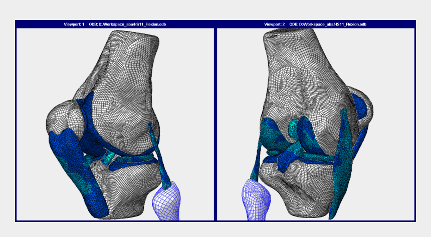 knee joint clipart, Cartoons - Human Knee Joint Fe Model - Knee Finite Element Model