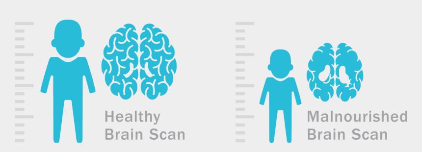 malnutrition clipart, Cartoons - Nutrilite Logo Png - Healthy Brain Vs Malnourished Brain