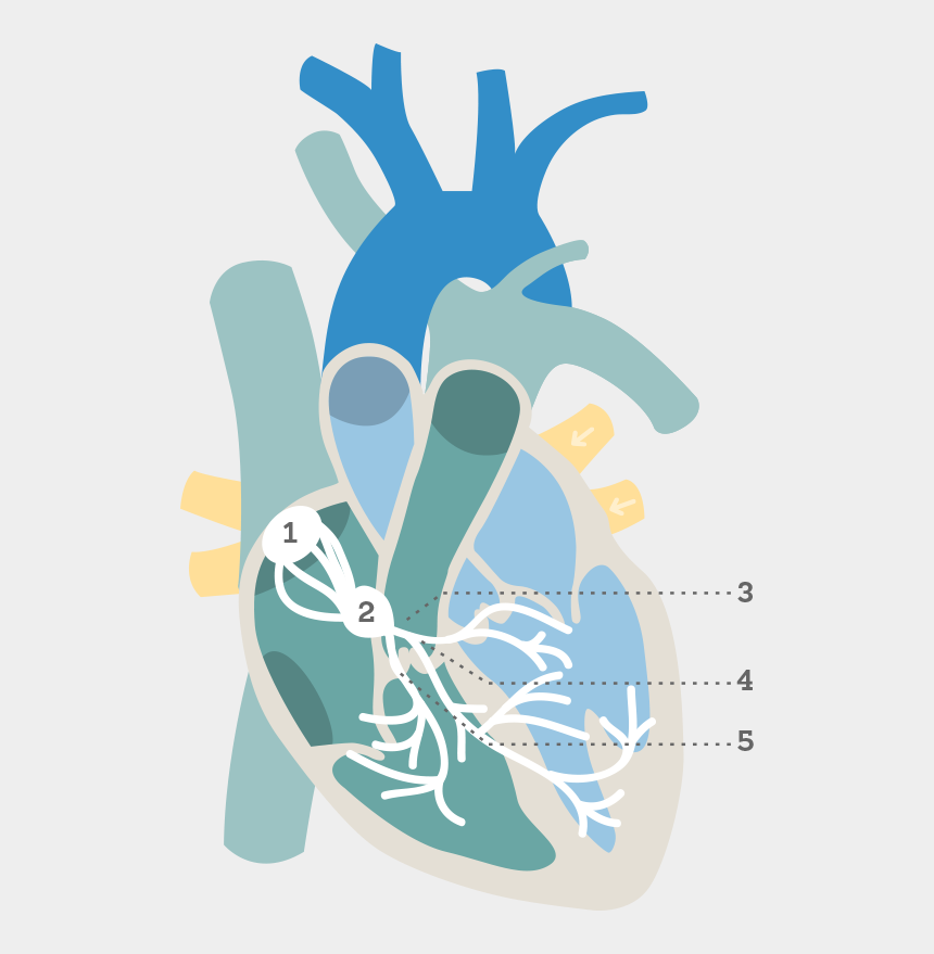sinus rhythm clipart, Cartoons - Also Known As An Electrocardiogram Or An Ekg, An Ecg - Electrocardiogram Graphics