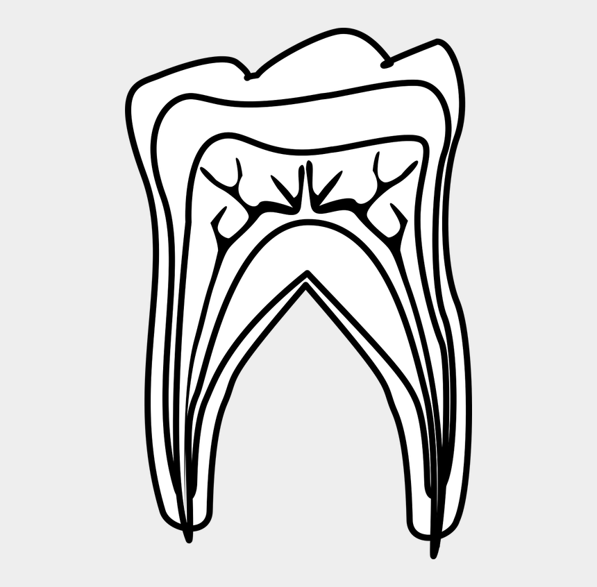 root canal clipart, Cartoons - Root Canal Treatment A Brief Walk Through Sambro Medium - Denti Come Sono Fatti