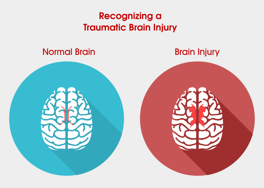 brain injury clipart, Cartoons - It Is Important To Know That - Normal Brain Vs Injured Brain