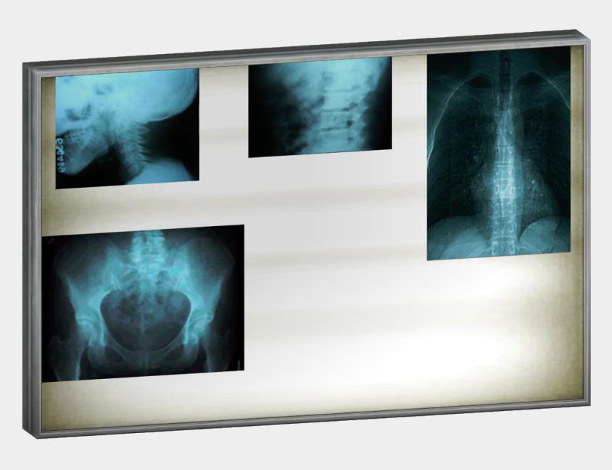 light ray clipart, Cartoons - X Ray Clipart Room - X Ray Lightbox